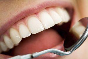teeth whitening bentleigh