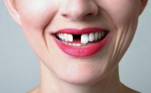 east bentleigh dental clinic